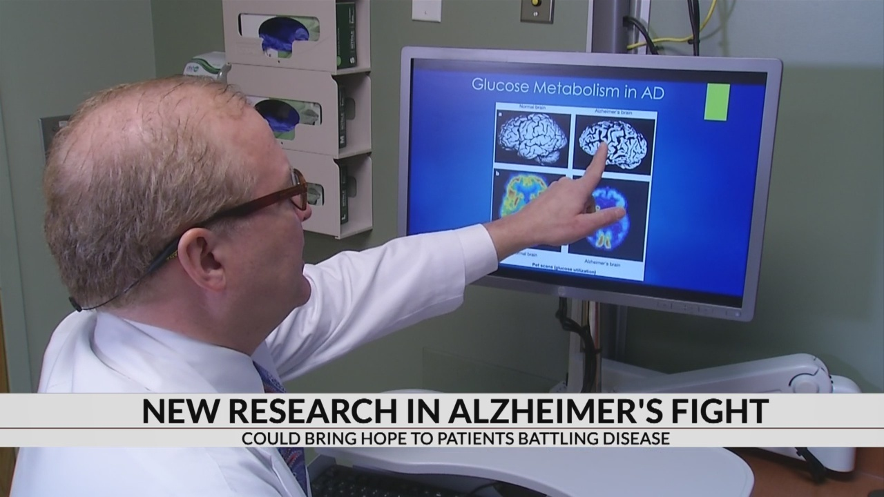 Alzheimer's study emphasize lowering blood pressure and good dental health to reduce risk